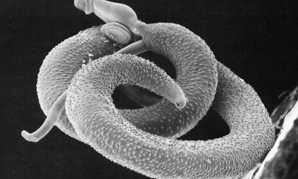Helminths, commonly known as parasitic worms, infect one third of the world's population, resulting in typically chronic and...